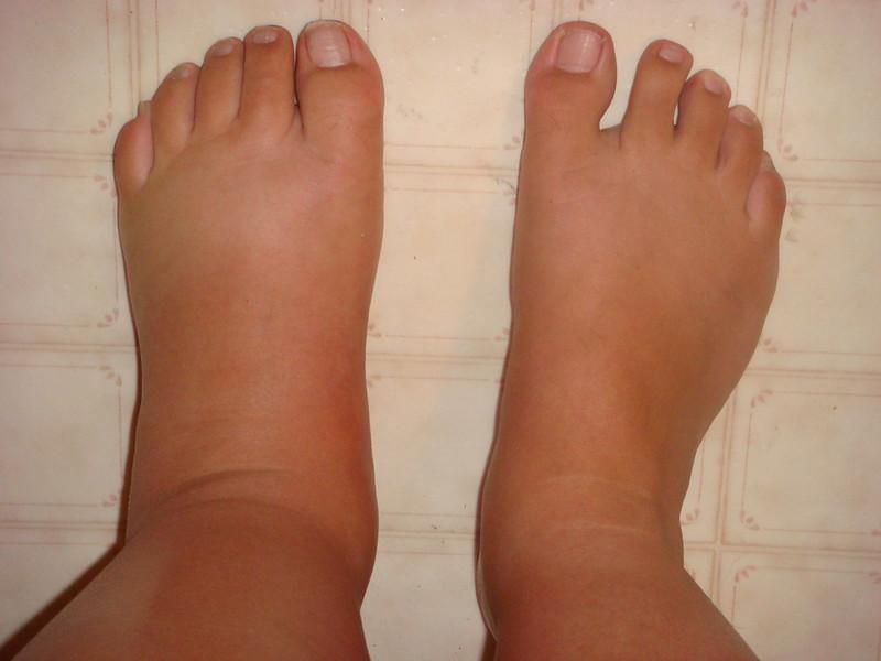 통풍이 아니다! 소시지 발 모양의 건선성 관절염(PsA)
