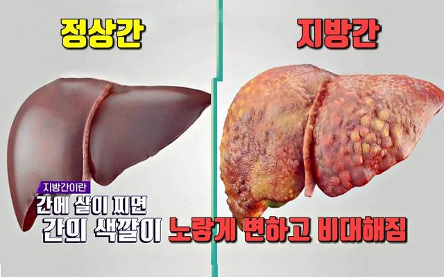 간에 좋은 음식, 지방간에 좋은 음식, 간암, 간경화, 건강