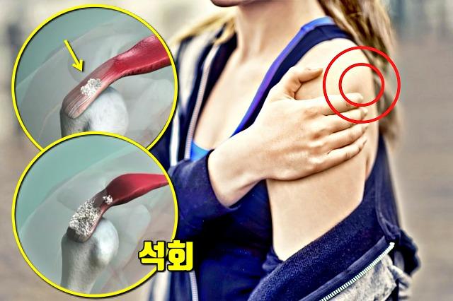 어깨통증 원인, 석회화건염 원인 치료 최에충격파, 좋은 운동, 건강, 팁줌마 매일꿀정보